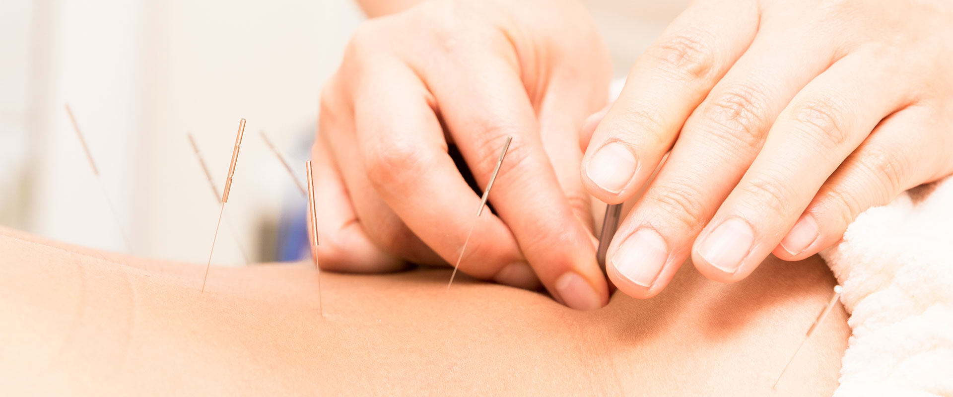 Healing Arts - Acupuncture, Craniosacral Therapy, Cupping, Scar Therapy